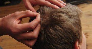 درمان شپش موی سر به کمک راهکارهای طب سنتی