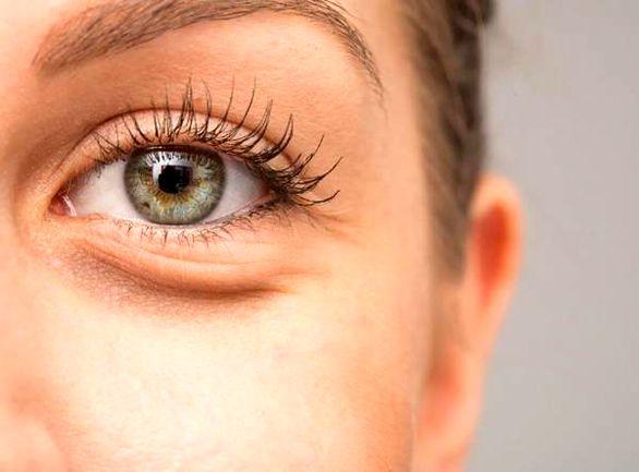پف زیر چشم (درمان خانگی و سنتی)